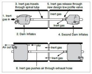 PurgElite Purging System